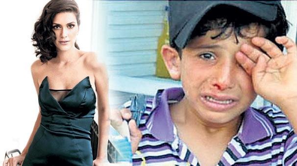 Güzellik Abidesi Bergüzar KOREL'DEN Tartaklanan Suriyeli Çocuk İçin Şok SERZENİŞLER