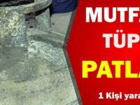 Siirt'te mutfak tüpü patladı - Siirt Son Dakika Haberleri
