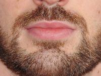 Erkekler İçin Özel Formülle Üretilmiş Nano Beard